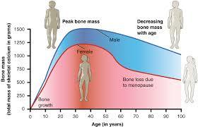 osteoporosis. wikipedia.org