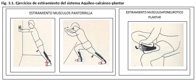 #fascitis plantar