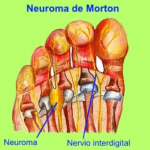 neuroma-de-morton-2